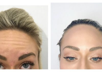 Anti-Wrinkle treatment to forehead before and after