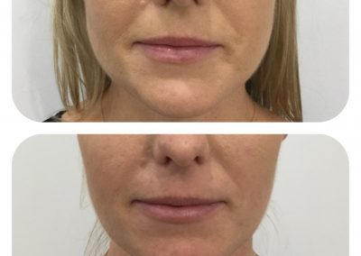 Before and after botox into masseters before and after