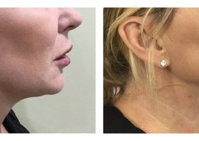 Belkyra to chin before and after