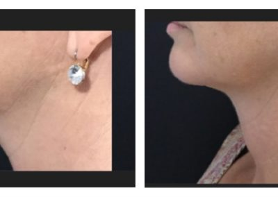 Coolsculpting to chin before and after
