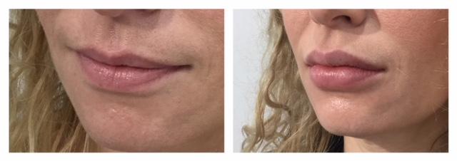 Dermal Filler before and after
