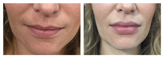 Dermal Filler to lips before and after