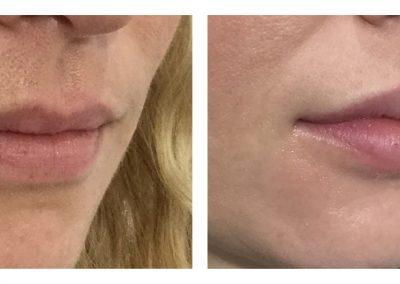 Dermal filler lips, before and after